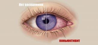 коньюктивит глаза