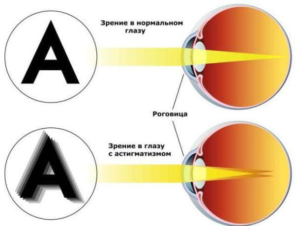 астигматизм глаз у взрослых