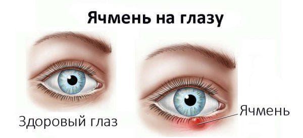 ячмень в глазу