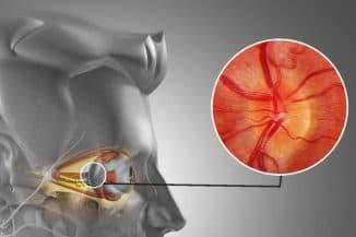 ретробульбарный неврит зрительного нерва симптомы