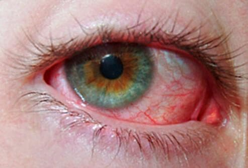 сильное покраснение в области глазных яблок