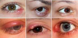 как вылечить внутренний ячмень на глазу