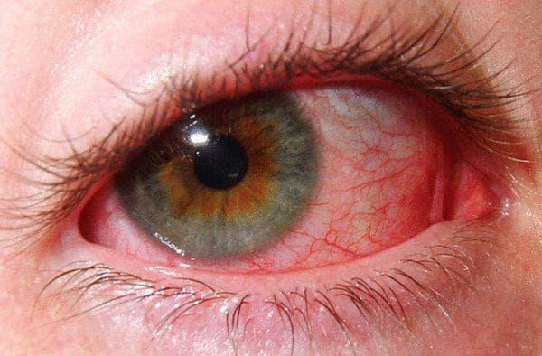 поражение слизистой оболочки глаза