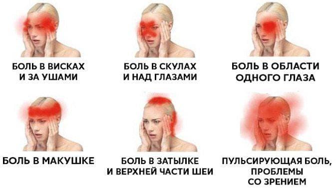 боли в области головы