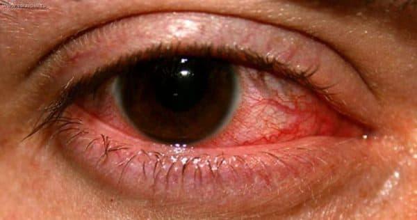 одна из форм заболевания глаза, которая достаточно тяжело лечится