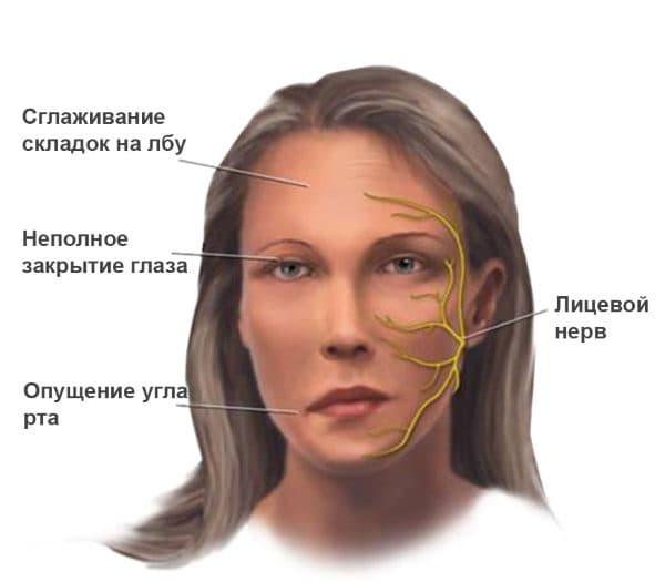 диагностика миастении