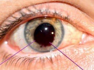 вывих хрусталика глаза