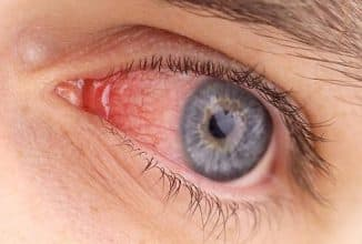 борьба с патогенной микрофлорой в глазу