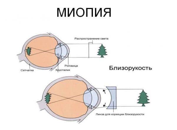 транзиторная миопия