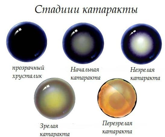 стадии катаракти